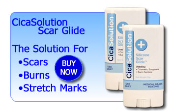 Scar reducing treatments by CicaSolution
